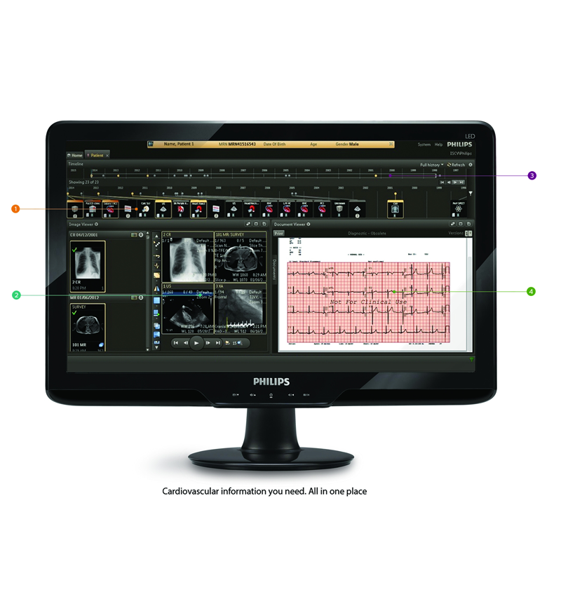 INTELLISPACE-CARDIOVASCULAR-PHILIPS